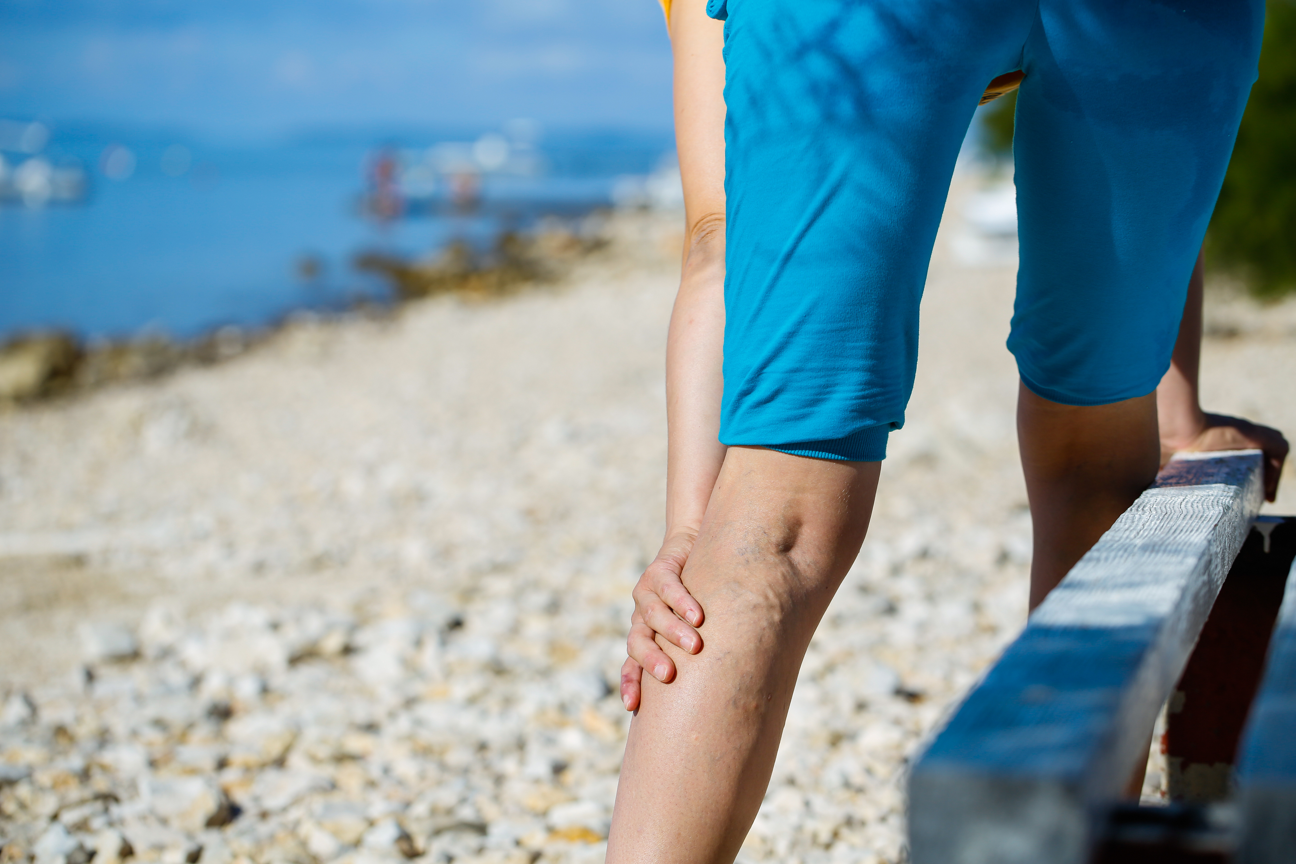how much varicose vein treatment cost